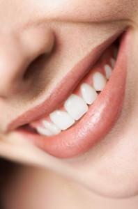 Veneers-smile
